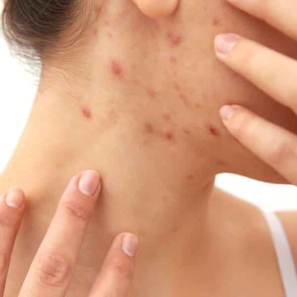 seboroicni-dermatitis-3
