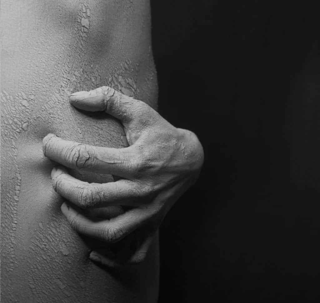 Praskanje suha koža