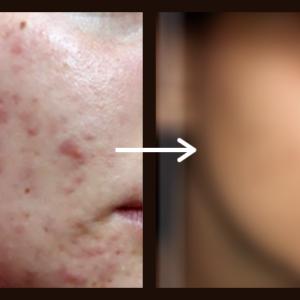 Akne in mozolji na obrazu