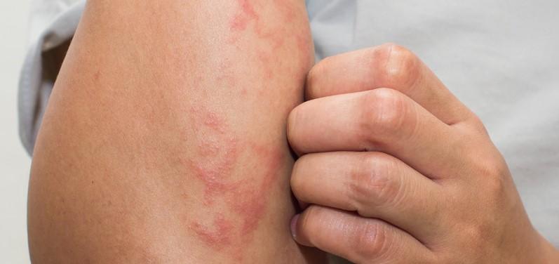 Koža atopičnega dermatitisa