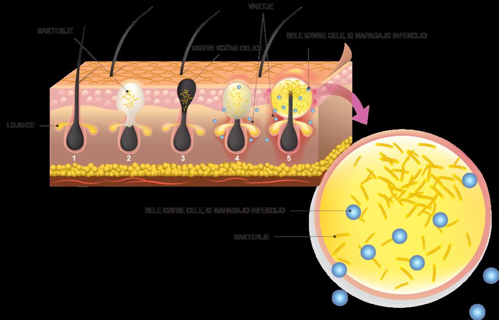 Nastanek mozolja - infekcija je ujeta, dokler ne stisnemo mozolja.