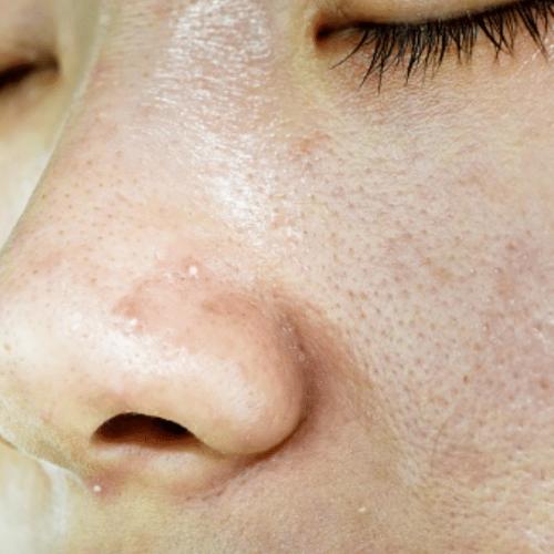 Stiskanje mozoljev koža
